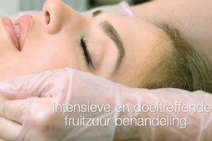 cenzaa-acne-bewerkt[1]